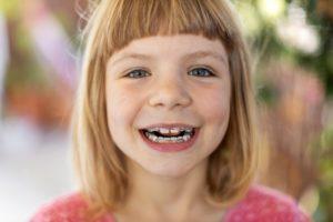 Smiling girl with pediatric braces in Grafton