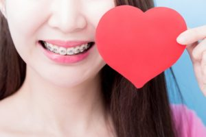 Closeup of patient with paper heart ready for kissing with braces